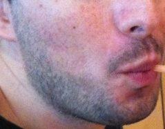 beard 1 week close up